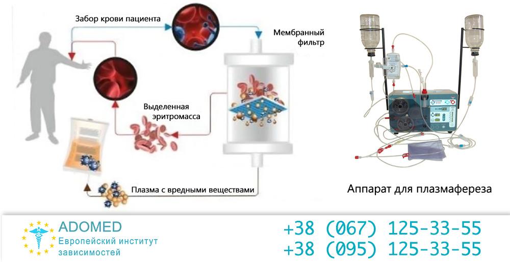 Апаратне очищення крові