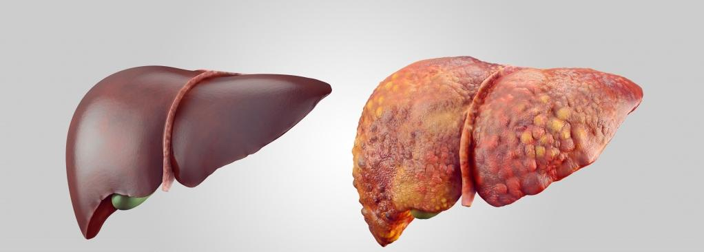 Симптоми цирозу печінки у алкозалежних